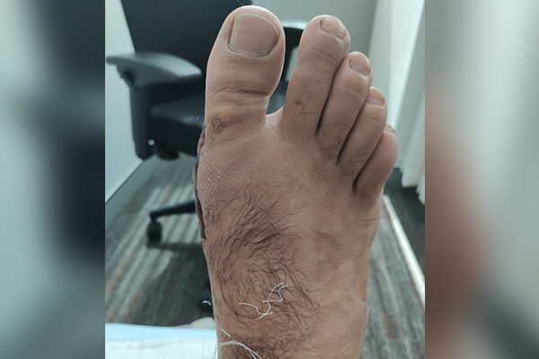 2 Bunion After (3 days)