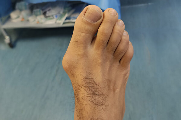 2 Bunion before
