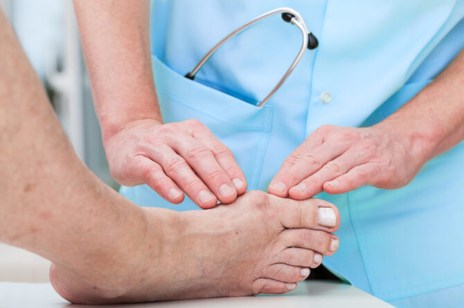 MINIMALLY INVASIVE(KEYHOLE) BUNION SURGERY (BRISBANE/GOLD COAST)