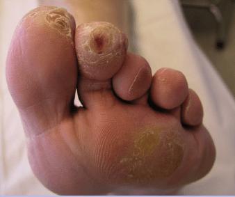 0 Toe Ulcer Before