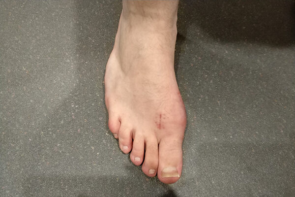1 Bunion after (6 weeks)