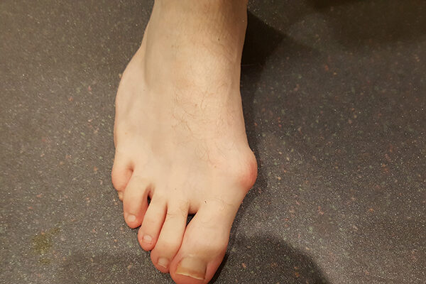 1 Bunion before