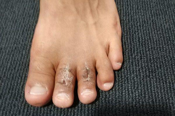 1 Toe Shortening After