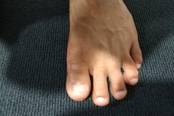 1 Toe Shortening Before