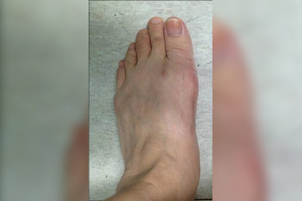 10 Bunion After 6 Weeks