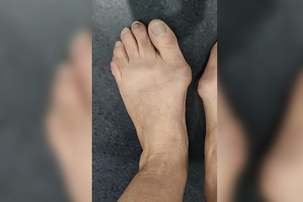 10 Bunion Before