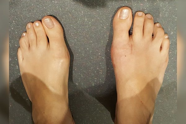 2 Bunion After 6 Weeks