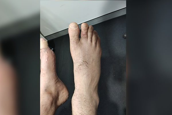 2 Toe Shortening After
