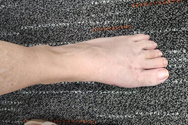 3 Bunion after (3 months)