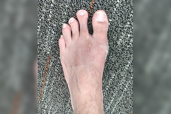 3 Bunion After 4 Weeks