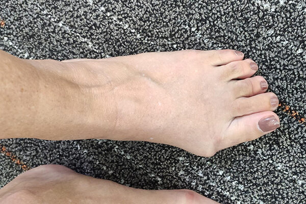 3 Bunion before