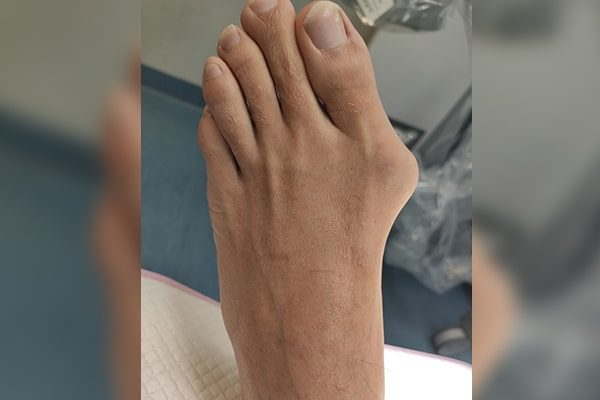3 Before Bunion-3