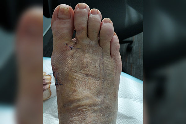 3 Keyhole Bunion After 5 Days