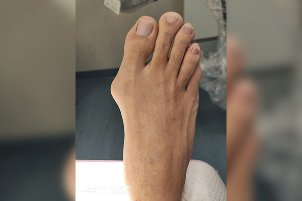 4 Before Bunion
