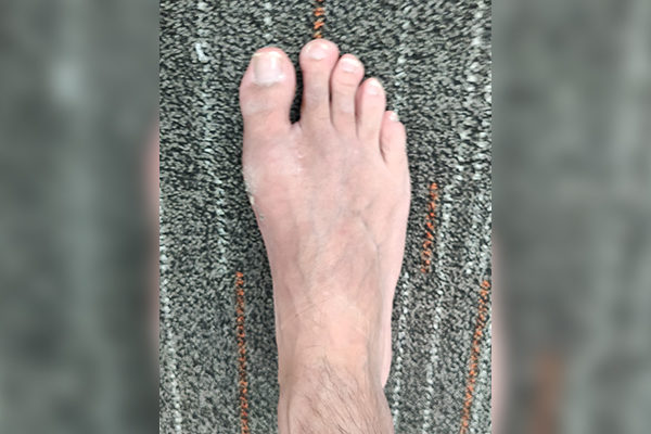 4 Bunion After 4 Weeks