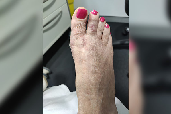 5 Bunion After 4 weeks