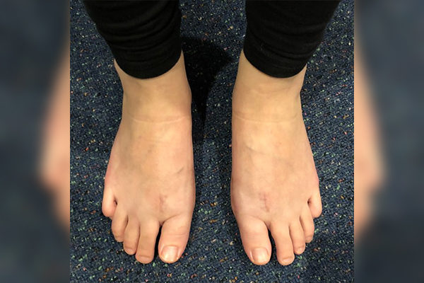 8 Bunion After 10 Weeks
