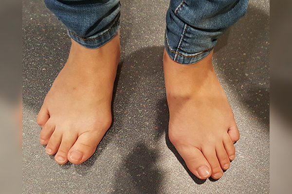 8 Bunion Before