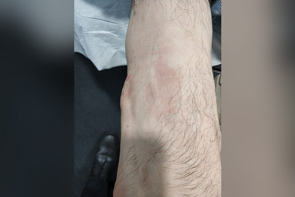Ganglion Cyst after 1 (4 weeks)