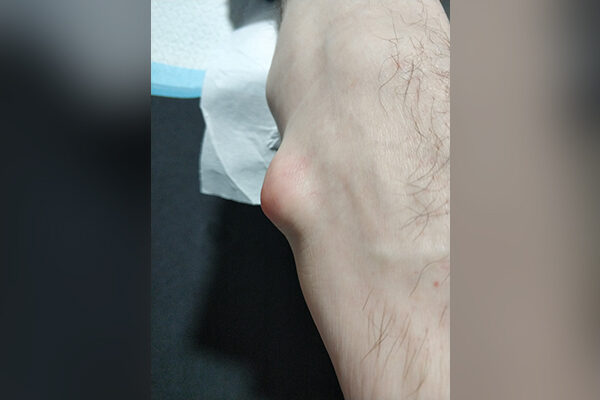 Ganglion Cyst before