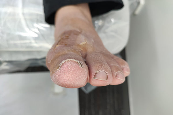 Gout After 3 Weeks