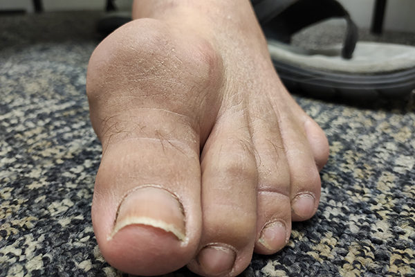 Gout Before
