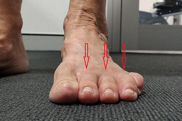 l Foot After