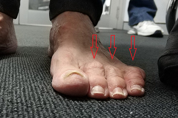 l Foot Before